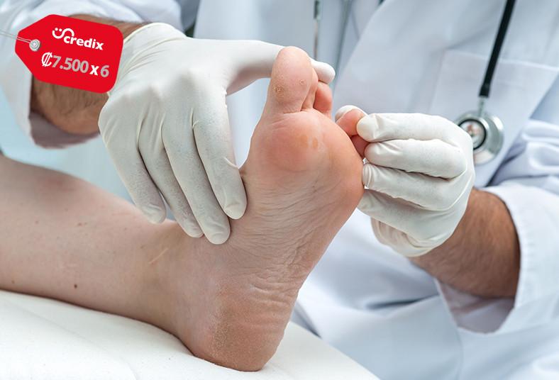 bielece, spa, tratamiento, hongos, uñas, manos, pies, salud, láser, cuidado,