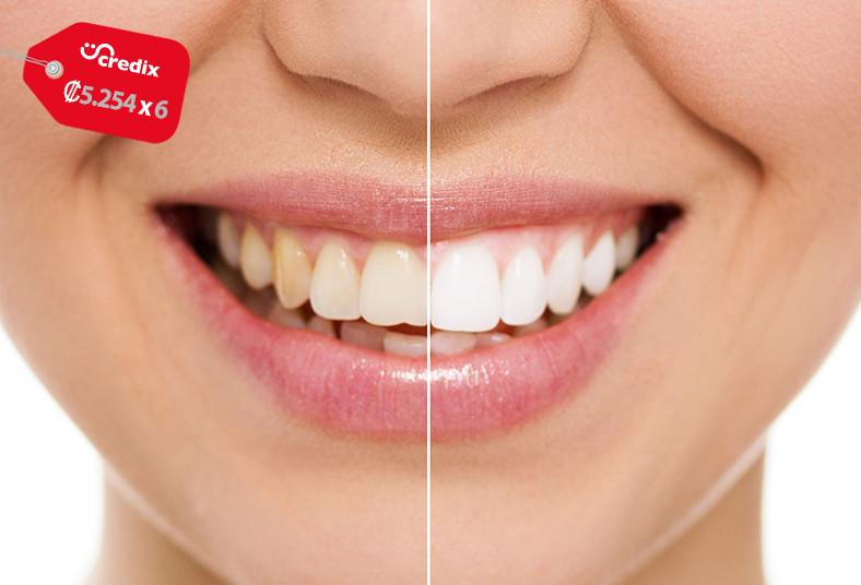 Biohealth, Concept, blanqueamiento, dientes, salud, bucodental, apariencia,