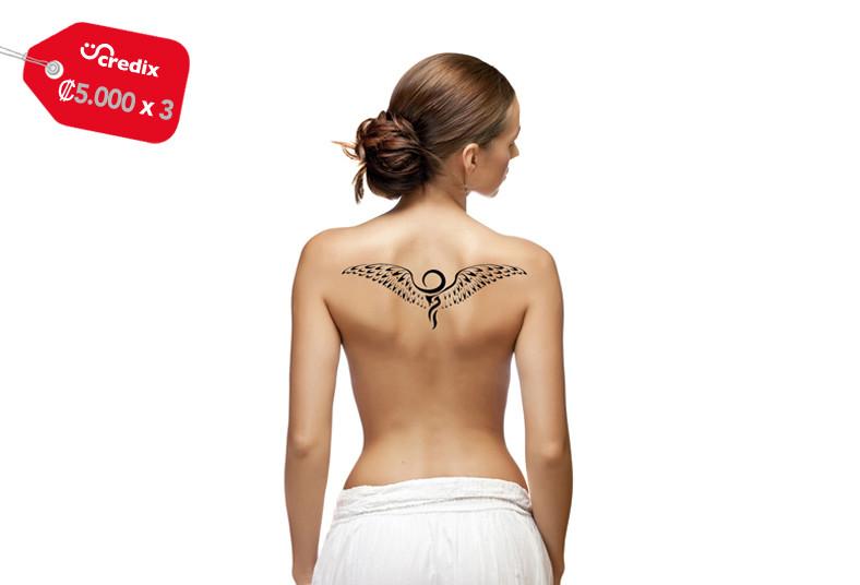 San, bosco, medical, eliminación, tatuaje, láser, área, tamaño, tinta, color,