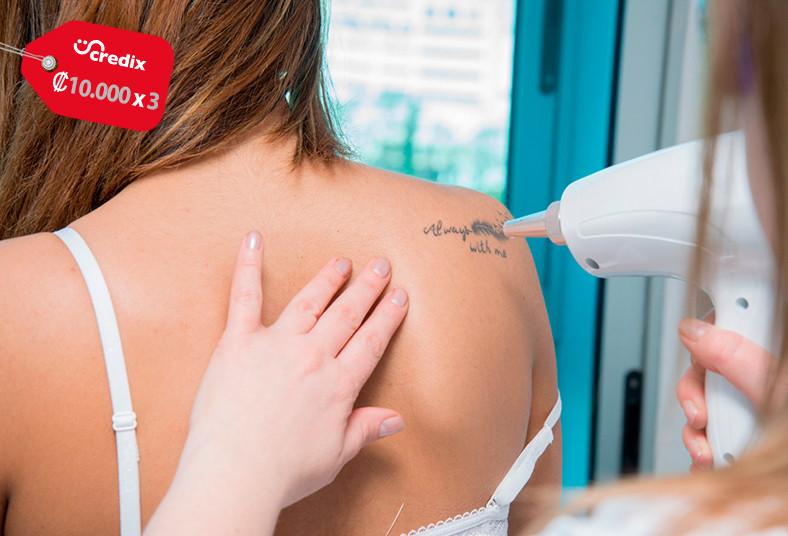 clínica, cym, eliminación, tatuaje, láser, nd, yag, tinta, área, piel, sesiones,