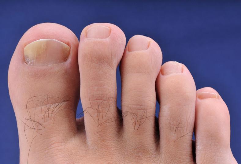 dentisalud, uñas, hongos, manos, pies, tratamiento, láser, dedos, esteticistas