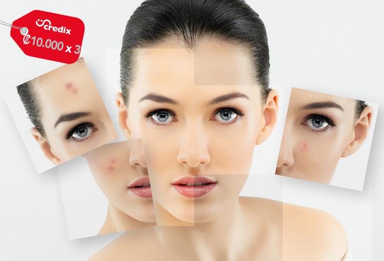 Dermalight, tratamiento, facial, láser, acné, rostro, piel, tonificación,