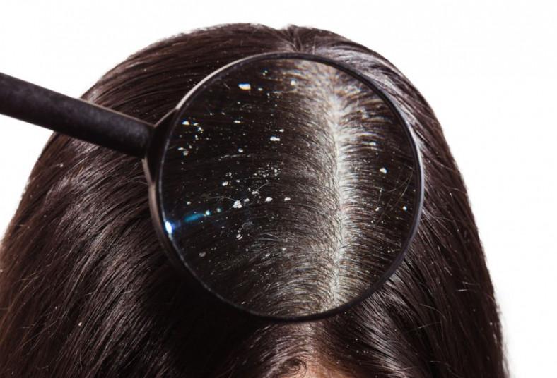 Effectos, salón, spa, celulas, madres, scan, hair, detox, capilar, vaporizador,
