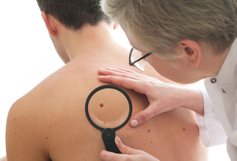 clínica, familia, verrugas, lunares, benignos, malignos, rostro, cuello, espalda