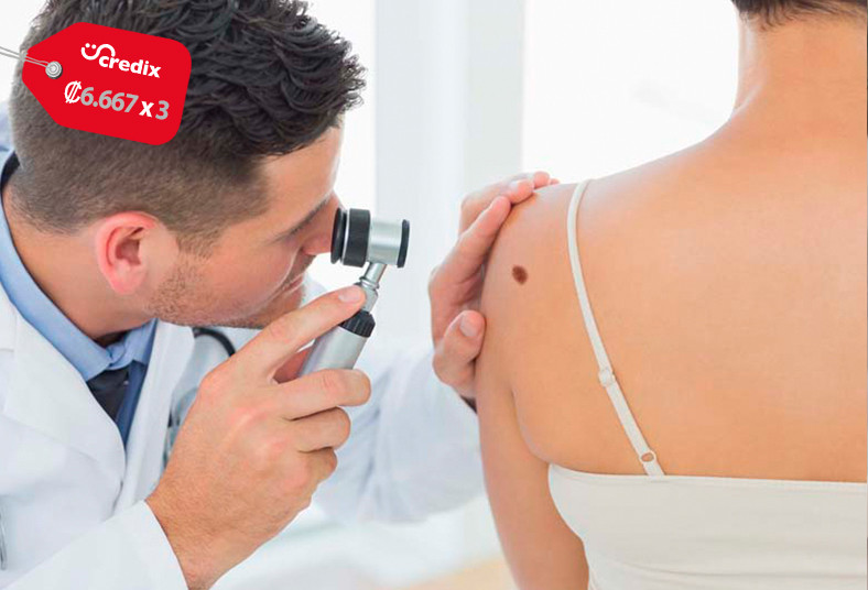 Clinica, familia, lesiones, lunares, verrugas, salud, crioterapia, indoloro,