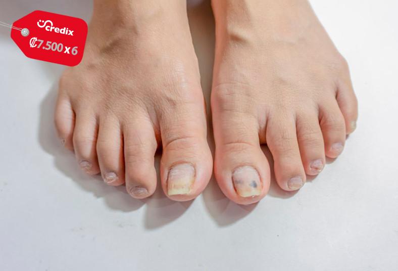 Geneve, esthetic, tratamiento, hongos, uñas, efectivo, pies, manos, salud,
