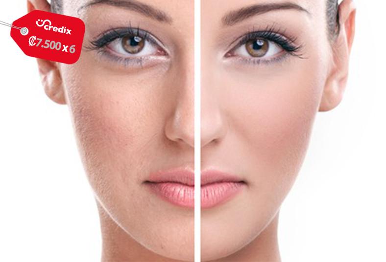 estética, habitus, tratamiento, bb, glow, maquillaje, manchas, luminosidad, piel