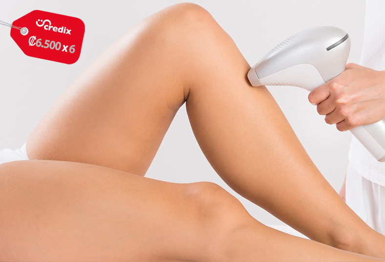 soluciones, estéticas, depilación, ipl, vellos, mentón, pierna, axilas, bikini,