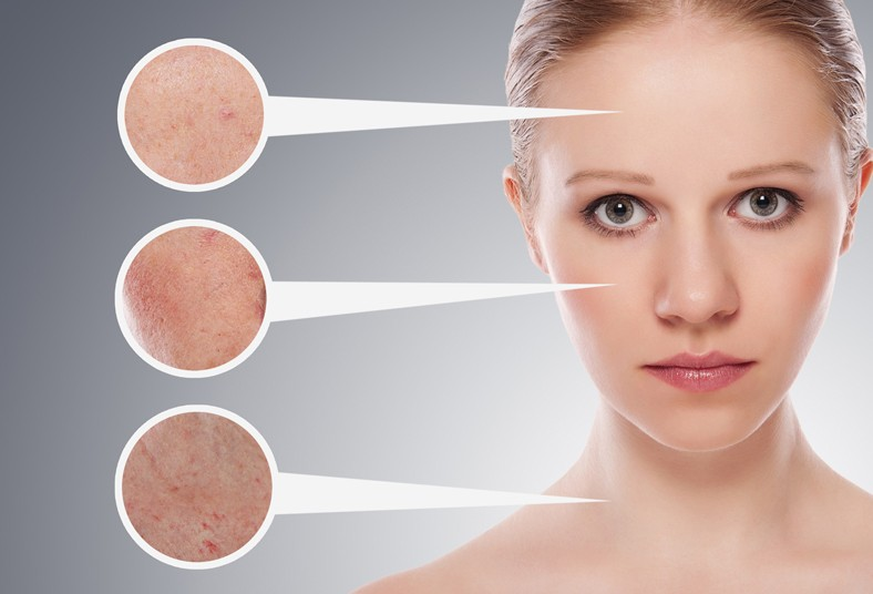 jin's, bioesthetic, center, gramos, mascarilla, exfoliante, clavillos, poros,