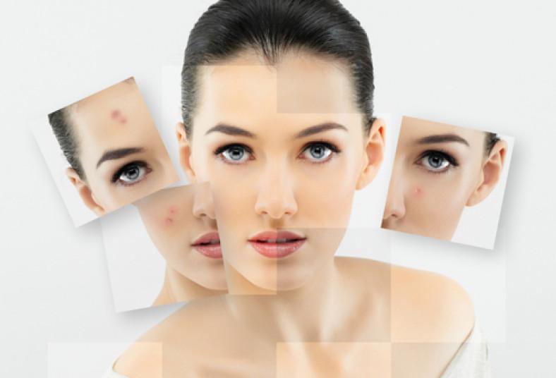 estética, facial, manchas, microdermoabrasión, regenerador, hilos, seda, acné