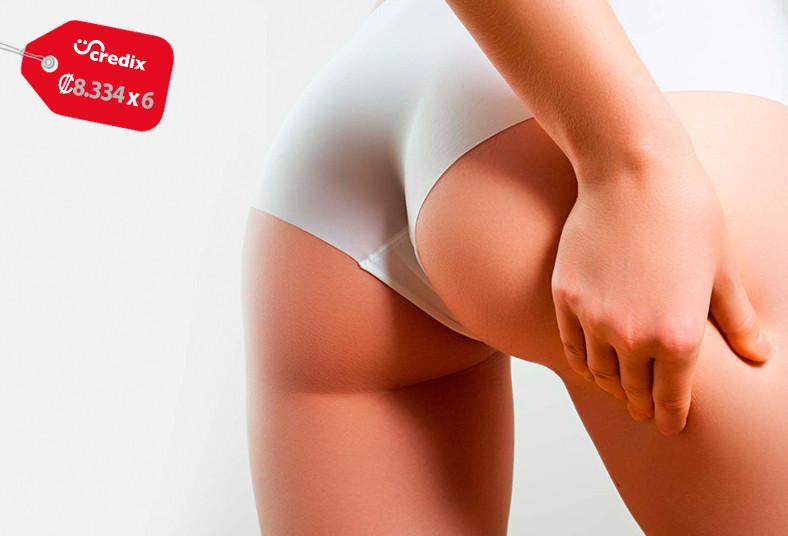 marcia, bodyshape, estetica, dermapen, estrías, abdomen, glúteos, vitamina, piel