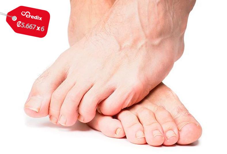 centro, salud, integral, montenegro, hongos, láser, pies, manos, nd, yag, salud