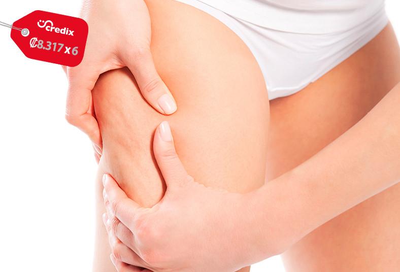 nuova, esthetic, tratamiento, anticelulítico, flash, brazos, piernas, lipoláser,