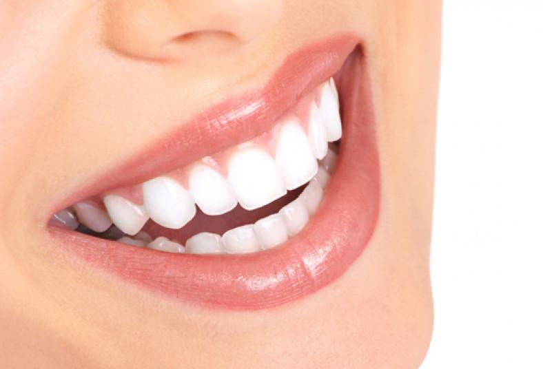 Odontología, salud, belleza, dientes, resina, sonrisa, limpieza, calza, caries