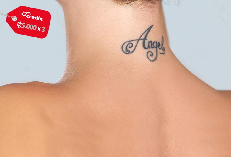 Effleurage, Esthetics, tatuajes, plasma, pen, piel, indoloro, eliminación, zona,