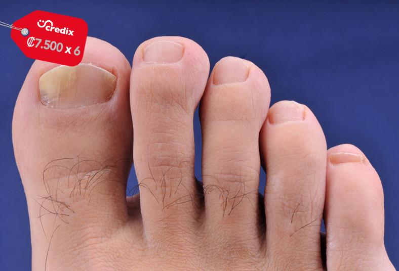 retoke's, hongos, uñas, tratamiento, láser, hombre, mujer, salud, manos, pies,