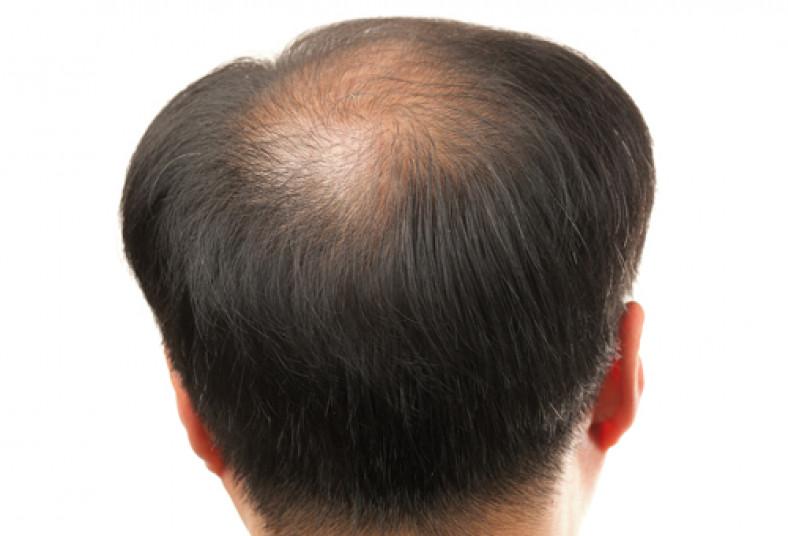 Las causas de la alopecia a la edad temprana a los hombres