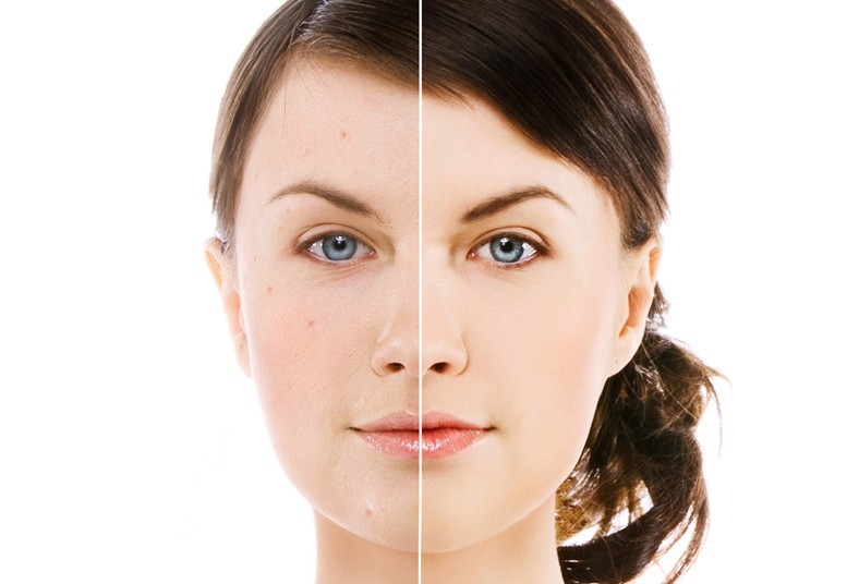 saude, clínica, estética, limpieza, facial, profunda, fototerapia, manchas,