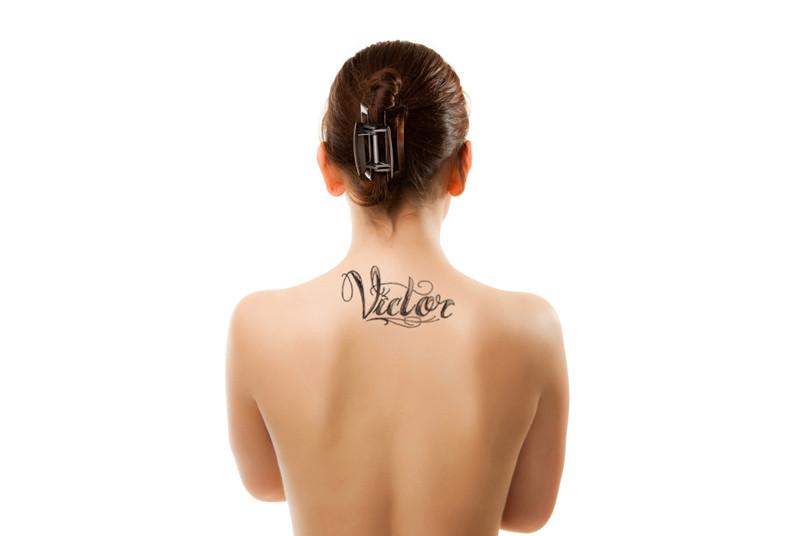 clínica, stetik, eliminación, tratamiento, láser, tatuaje, cuerpo, colores, piel