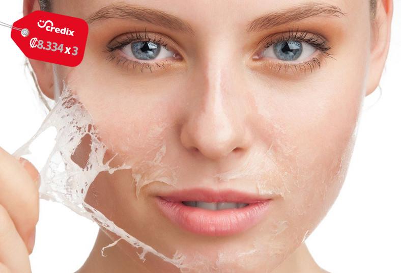 Clínica, Estética, Lux, Uzuri, peeling, facial, piel, porcelana, arrugas, mancha